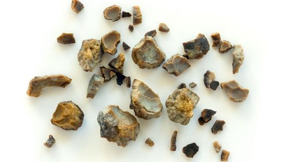 Kidney Stone Treatment |  Best Homeopathy Clinic in India for Kidney Stone