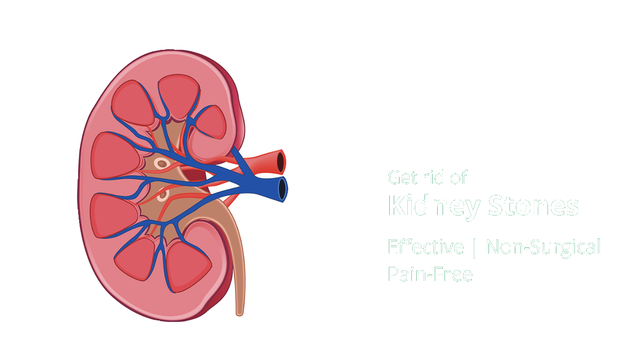 Homeopathic Treatment for Kidney Stones